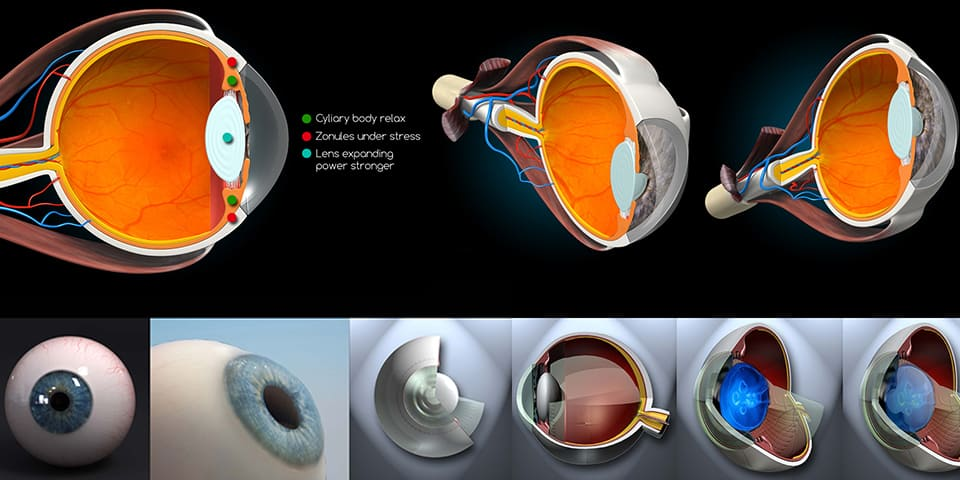 cataract treatment photorealistic eyes
