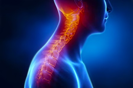 Medical animation – Scoliosis Treatment
